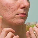 acne-scars-aloe-vera