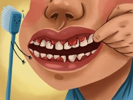 bleeding gums treatment