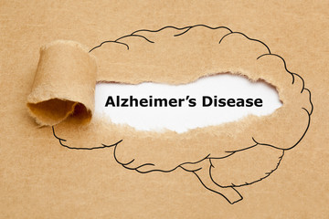 Is There A Difference Between Alzheimers and Dementia?