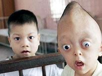 Xuan Minh, 3, looks out from his bed at the Tu Du Hospital in Ho Chi Min city on Friday March 25,2005, suffering from what is believed to be the effects of the jungle defoliant Agent Orange, used heavily in the region by the U.S. armed forces during the Vietnam War. Vietnam celebrates the end of hostilities on April 30, 2005, marking 30 years since war in Vietnam ended. (AP Photo/Richard Vogel)