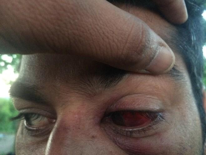تعرض لضرب من الشرطة الكرواتية - انترنت