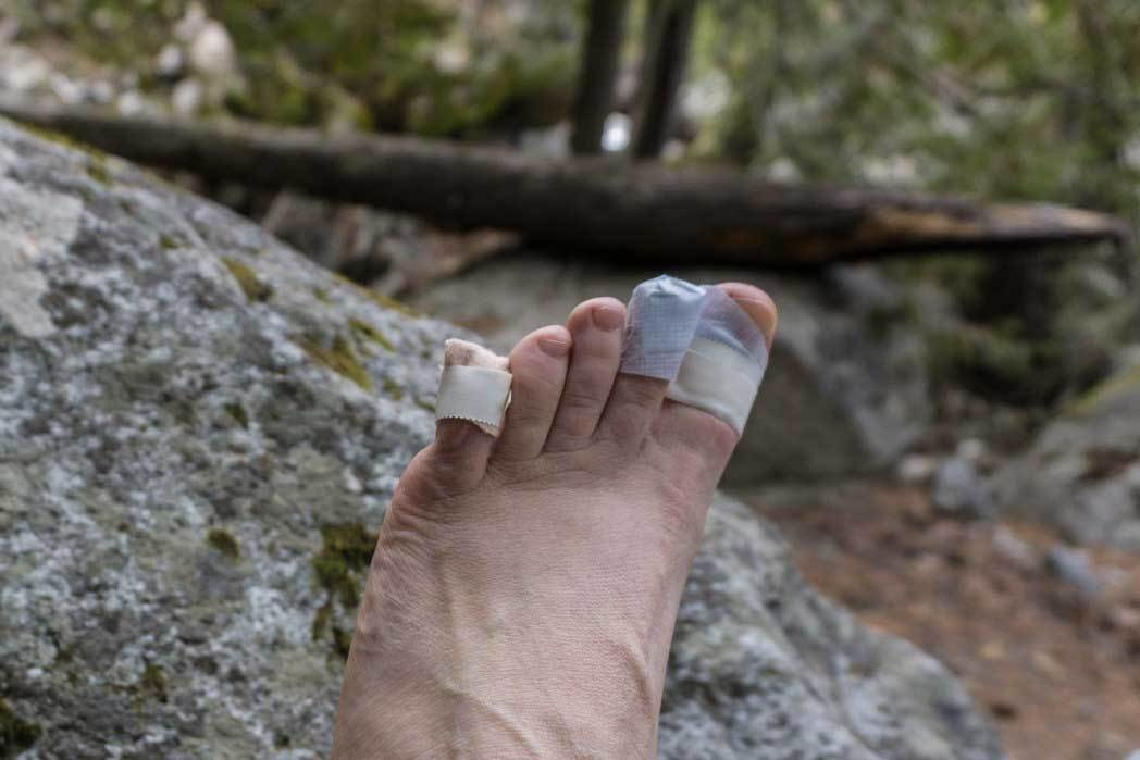 How to Prevent Blisters When Hiking