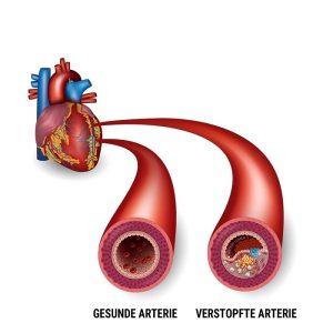 myokardinfarkt-arterien