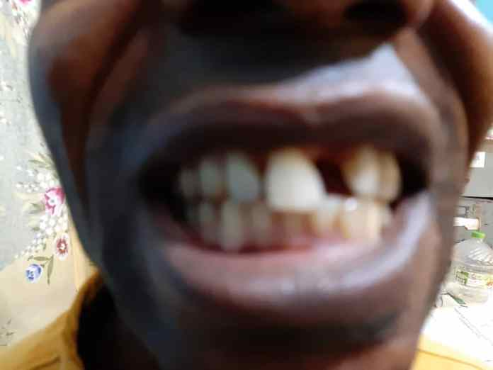 Geroge's Ala, the security guard tooth removed by Mr. Rufus Akeju