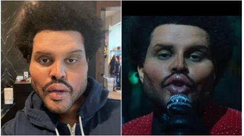 PHOTO: Unbelievable! The Weeknd shocks the world with his new face