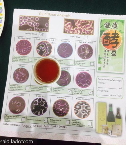 Live Blood Analysis ( LBA ) : Uji Kesihatan Darah di Vitacare Pharmacy
