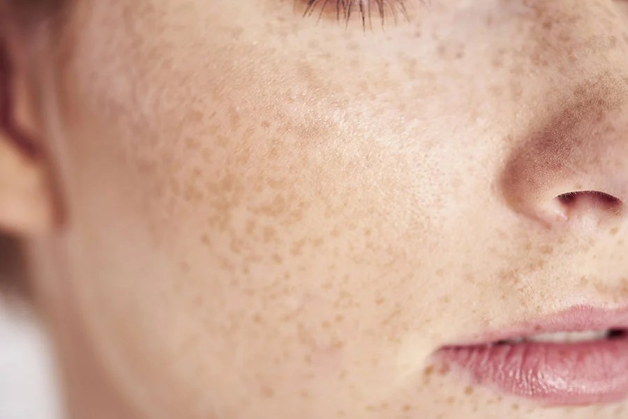 comment soigner les rougeurs du visage saint gervais mont blanc