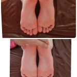 脚の長さ歪みが改善します