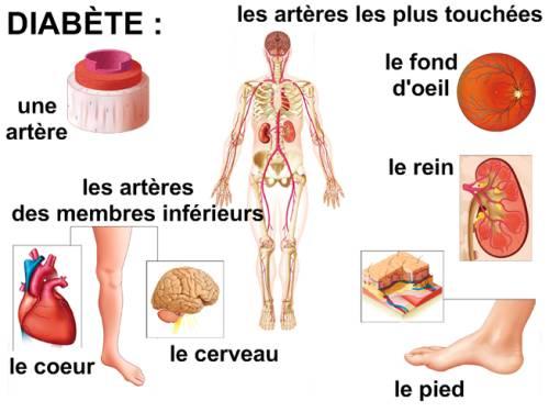 SURVEILLANCE MÉDICALE DE LA PERSONNE DIABÉTIQUE