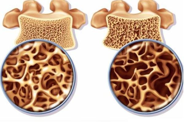 DIABETES AND BONE MINERAL DENSITY – BMD –