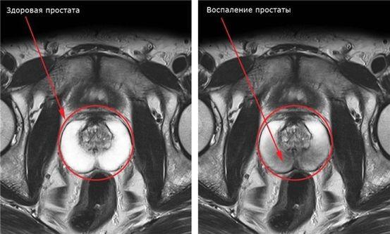 Prostatite ! Nos recommandations hygiéno-diététo-nutritionnelles