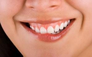 5 remedios caseros para eliminar las aftas en la boca