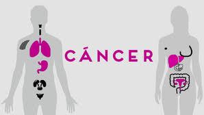 Hay 67% más casos de cáncer que hace 35 años:…