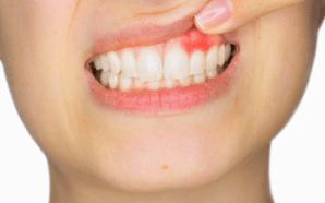 6 razones por las que las encías pueden sangrar