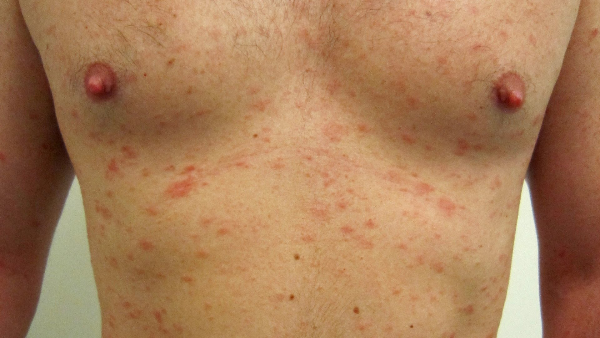 Como saber si tienes sifilis sintomas