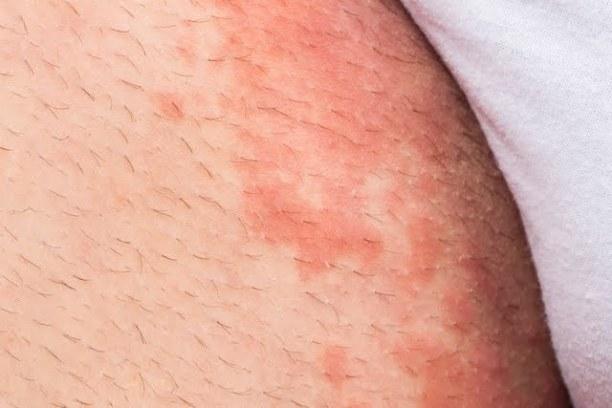 tipos de hongos en la piel tiña
