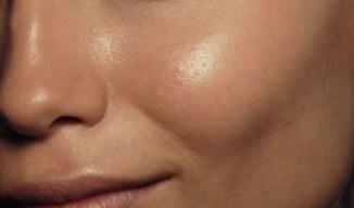 oily-skin-1