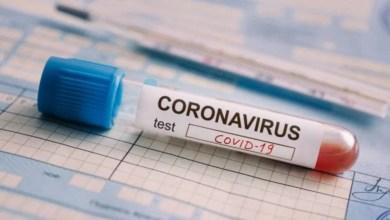 Photo of Se registraron 28 nuevas muertes por coronavirus durante las últimas horas