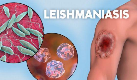 Las leishmaniasis tienen tratamiento médico y cura