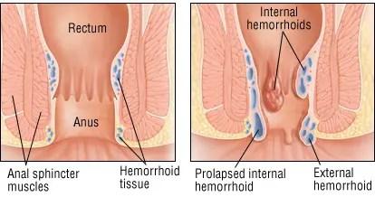 Znalezione obrazy dla zapytania Hemorroides Control