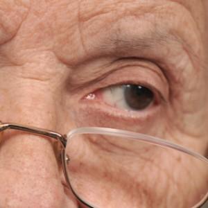 Diabetes daña tus ojos