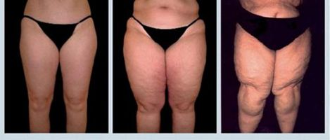 Lipedema a hard disease that you should know