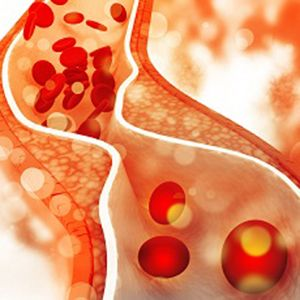 What is cholesterol ?
