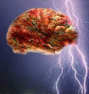 Un encéfalo con rayos de fondo. Simula la tormenta eléctrica que supone la Epilepsia
