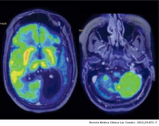 Resonancia de un encéfalo en plena crisis epiléptica