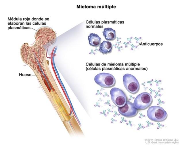 Representación gráfica de formación de un mieloma