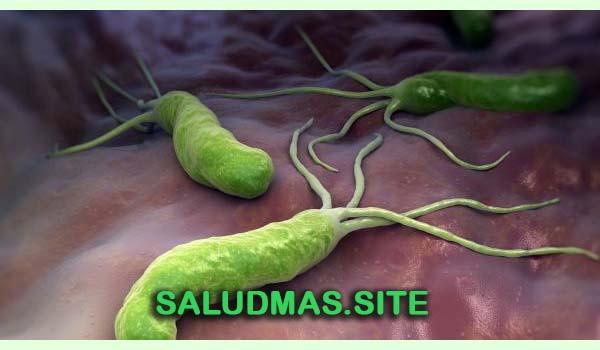 Helicobacter Pylori Elimina Esta Peligrosa Bacteria