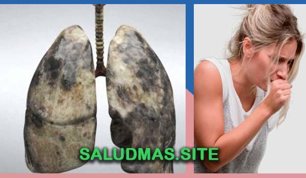 Tratamiento Natural Para El Cáncer De Pulmón