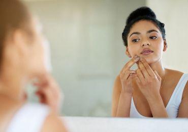 Métodos naturales para combatir el acné
