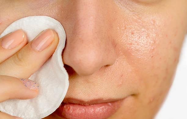 higiene para el acné