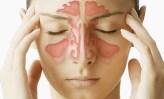 Remedios caseros para reducir los problemas sinusales