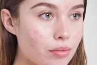 Clinica de acne