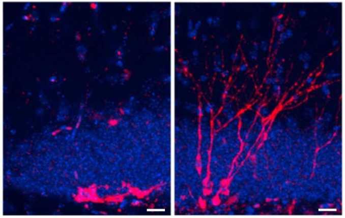 Cuál es la importancia de la neurogénesis, para qué sirve la neurogénesis