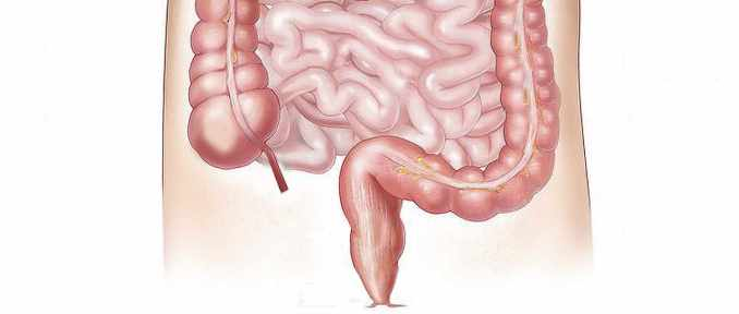 inflamacion colon intestino