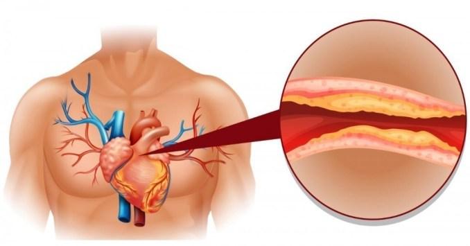 colesterol venas vascular
