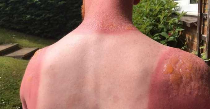 Piel quemada Quemaduras de la piel Piel abrasada