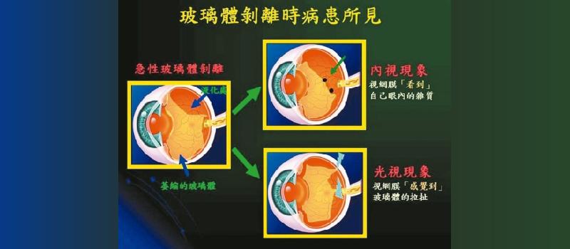 右眼看到閃光 左眼出現飛蚊…玻璃體剝離和視網膜剝離不一樣