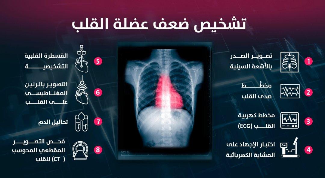 اعراض ضعف عضلة القلب