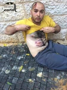 Munther Abu Jamal, after being beaten by occupation forces. Photo by Addameer.