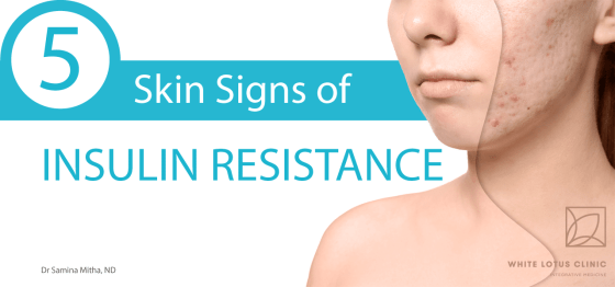 5 Skin Signs of Insulin Resistance