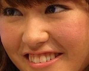 桐谷美玲、肌荒れ、ほんまでっか