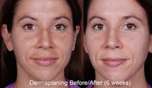 Dermaplaning San Antonio No Downtime Results In Minutes