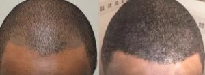 Scalp Micropigmentation San Antonio
