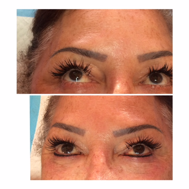 Eyeliner Permanent Makeup Before and After San Antonio