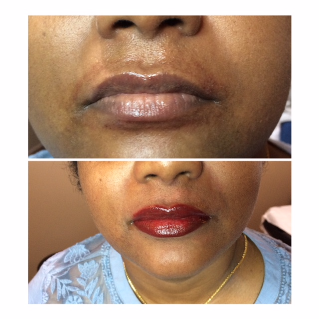 Full Lip Lattoo Before and After Photo
