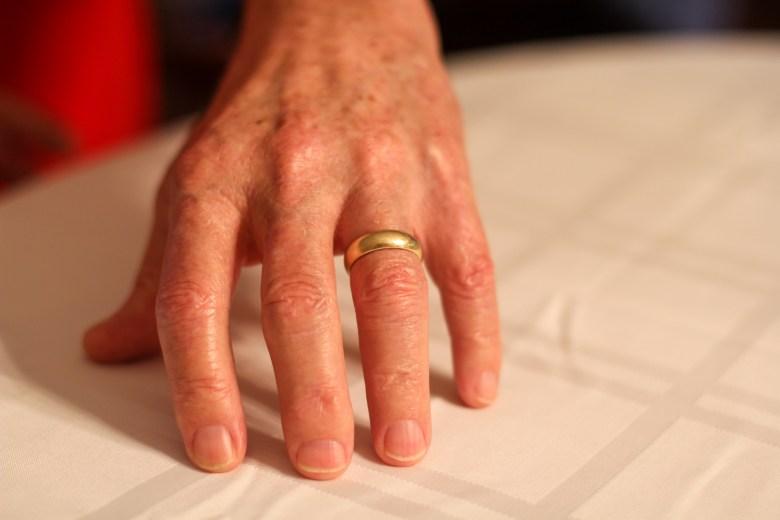 Robert Autenrieth's wedding ring.